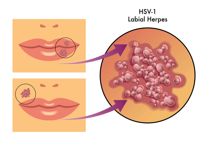 Herpes Lippe