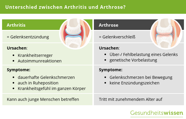 Unterschied Arthritis vs Arthrose