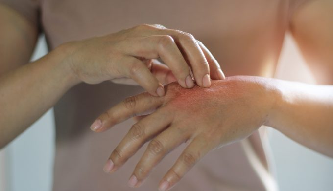 Healthcare and medical concept. Female scratching the itch on her hand, cause of itching from skin diseases, dry skin, allergy, chemical, allergic to detergent, insect bites, burned, drug. Health prob